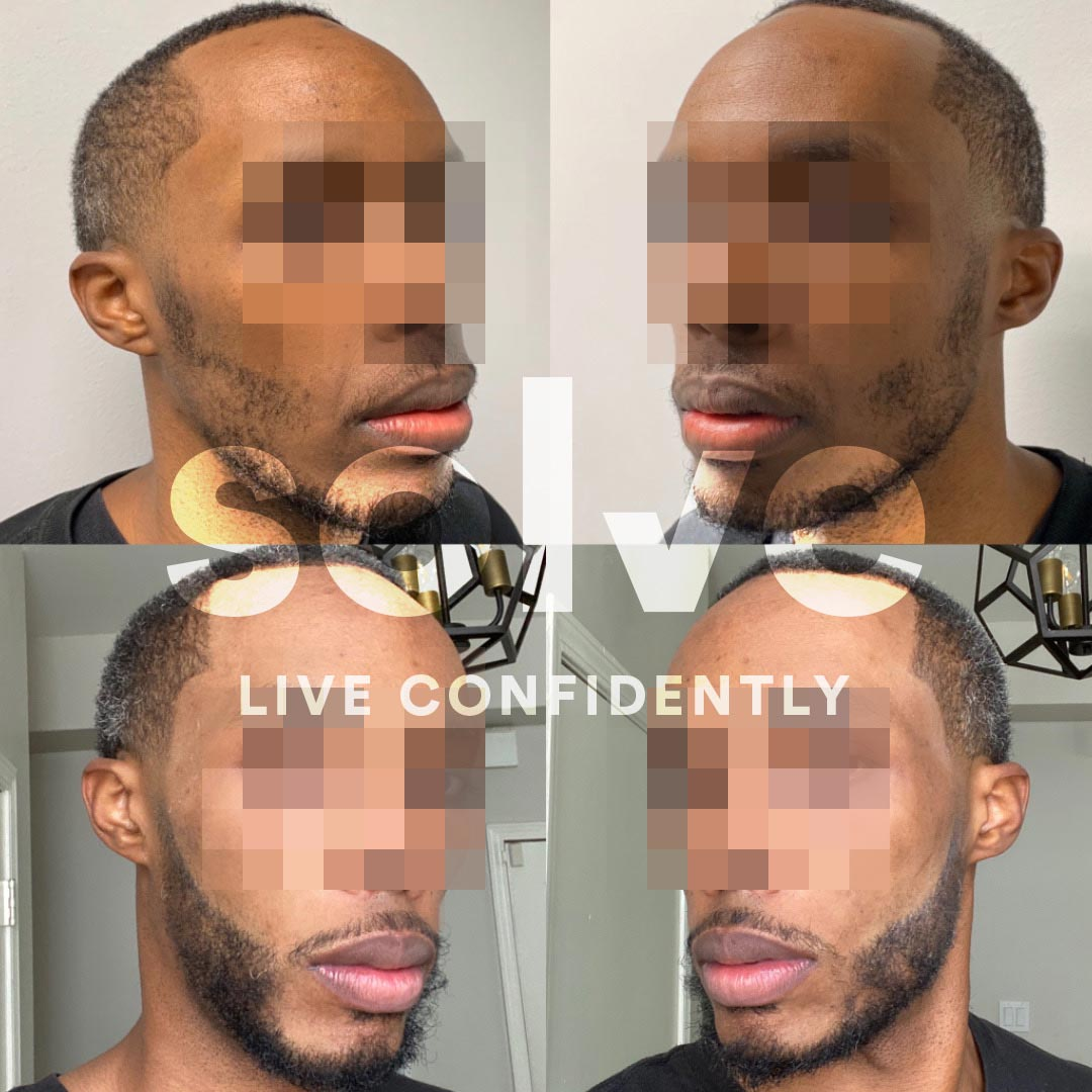 Solve Clinics Before and After Beard Transplant